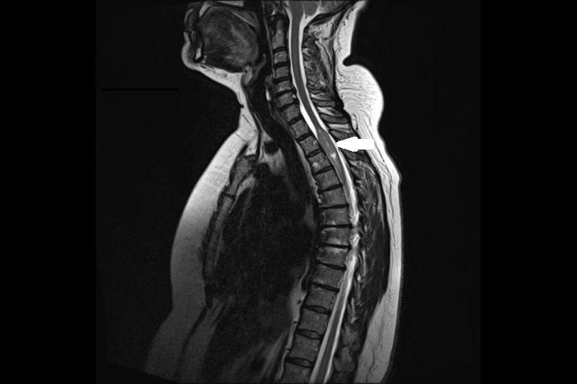 Tumor an Wirbelsäule oder Rückenmark - Krankenhaus Barmherzige ...